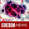 <b>BBC</b> Energy pulses could target cancer
