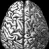 Ars Technica: How to Treat Brains That Might Not be Brains
