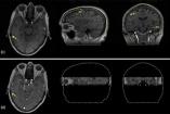 Brain MRI in Higher Resolution