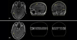 Brain MRI in Higher Resolution